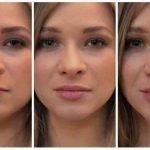 Chirurgia Estetica Labbra Permanente (ECCO LA VERITÀ)