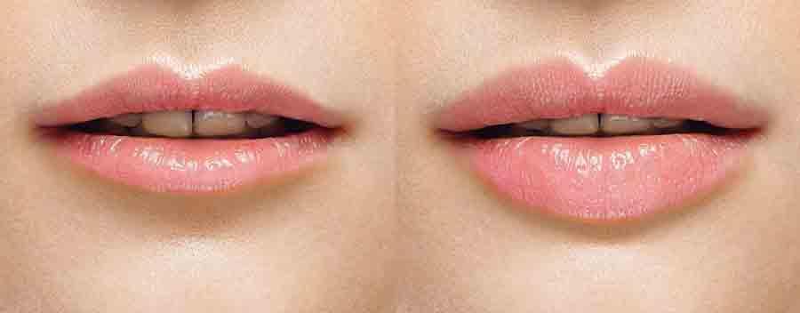 labbra carnose senza chirurgia