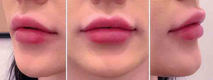 risultati labbra rifatte